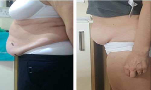 Fat Freezing (Cryolipolysis) in Woodley